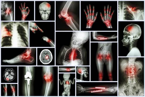 rehabilitacion musculoesqueletica